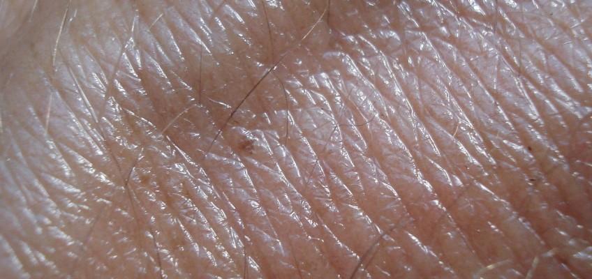 Léčbě chronické dermatitidy významně napomáhá detoxikace organismu a úprava jídelníčku
