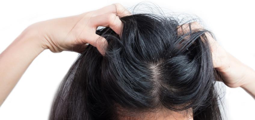 Jak na mastné vlasy?